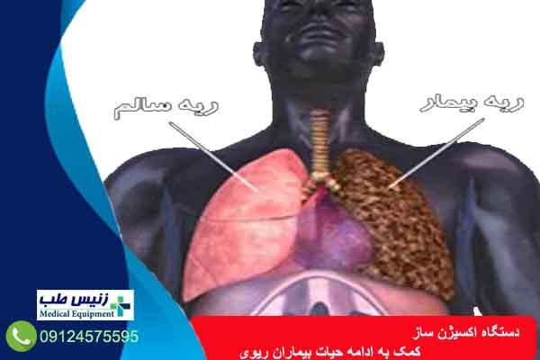 اکسیژن ساز خانگی ایرانی